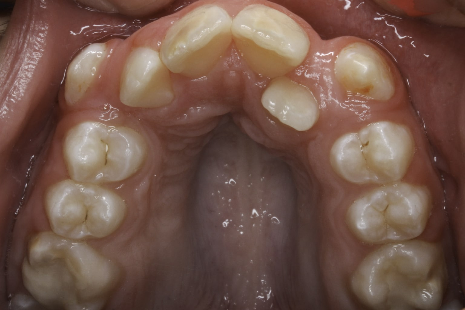 crooked teeth 1 before