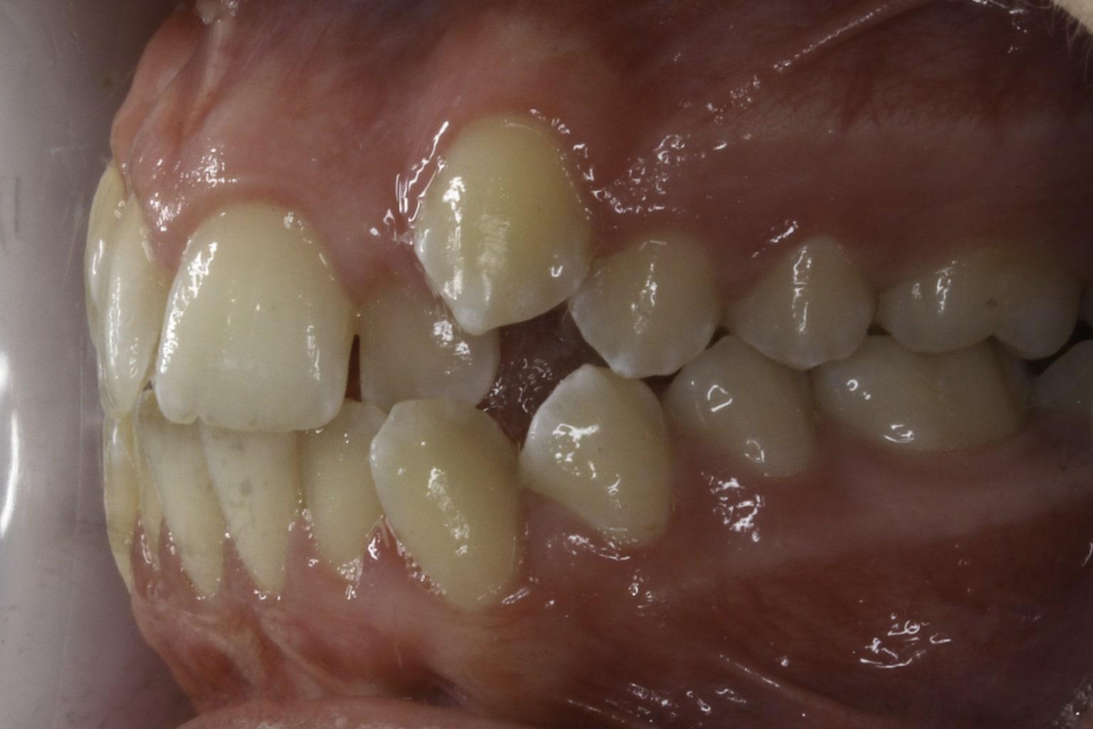 before crooked smile teeth