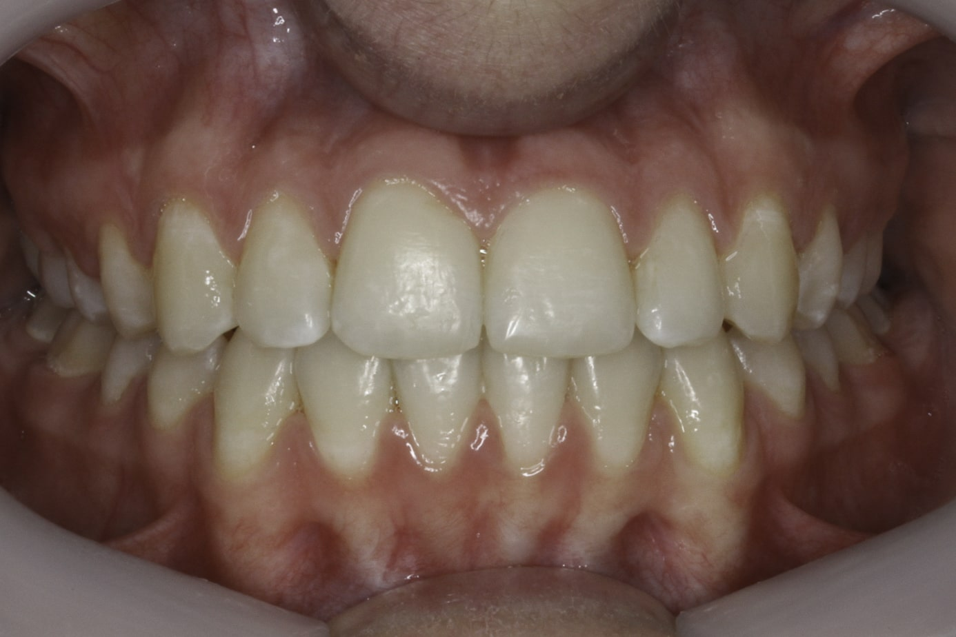 crooked teeth after smile