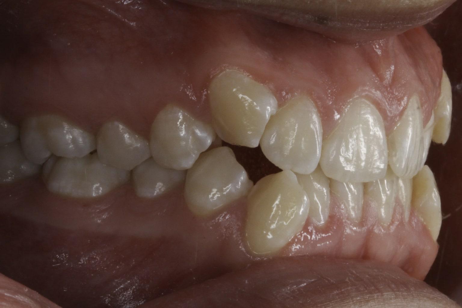crooked teeth 3 before