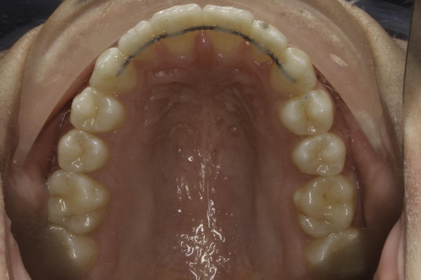 imbalance teeth 4 after