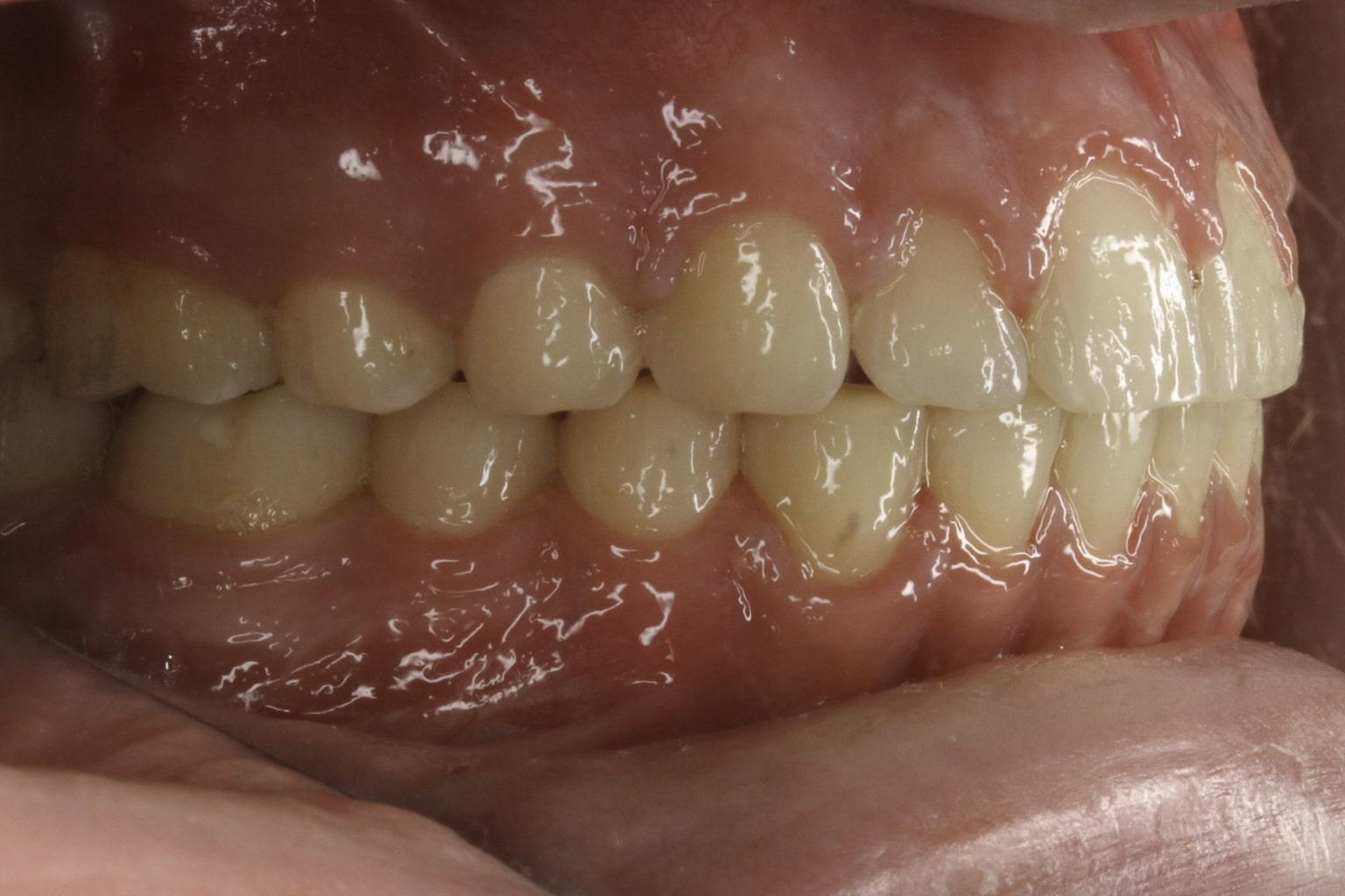 balanced teeth smile after