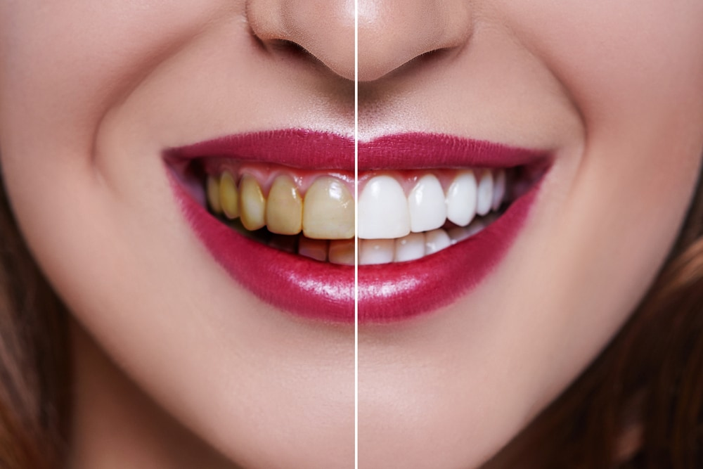 Discolouration of teeth