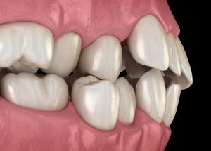 misalignment of teeth