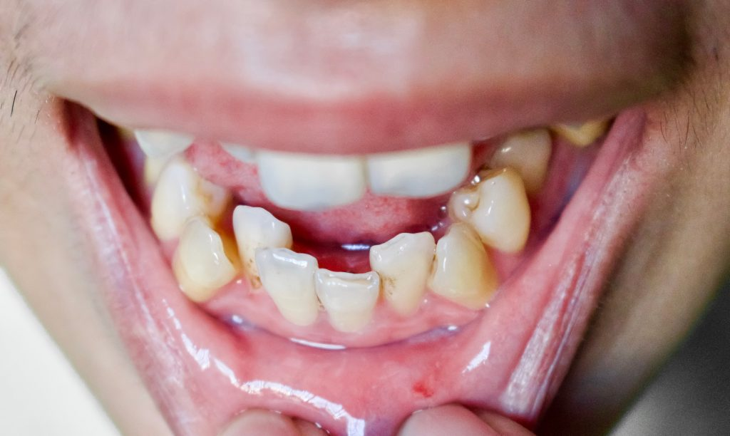 tooth misalignment